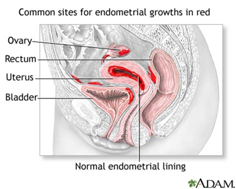 Shedding Of Uterine Lining During Pregnancy by Endometriosis