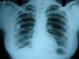 Dr  Sudip Banerjee  Beware Of Artifacts On Chest Xray