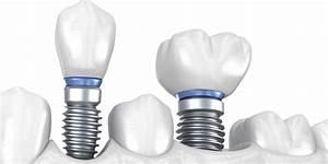 Single  U0026 Multiple Dental Implants