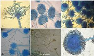 Microscopic Characters Of Aspergillus Isolates   A  A