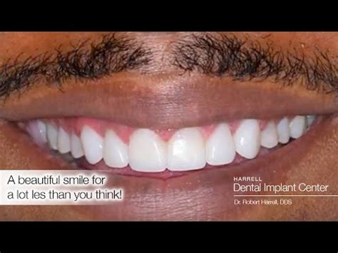 How much do dental implants cost? YouTube