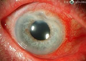 Peripheral Ulcerative Keratitis  Puk