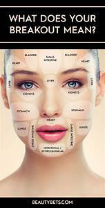 10 Things Pinterest Taught Me About Acne Acne Problem