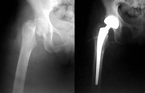 Hip Fracture Treatment Las Vegas