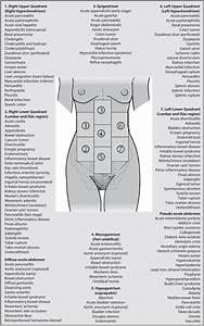 Differential Diagnosis Acute Abdominal Pain  Adapted From