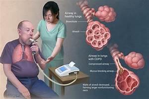 Understanding Lung Problems