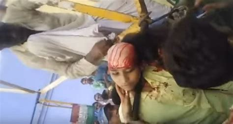 shocking video shows girl scalped  ferris wheel