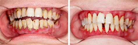 periodontal treatment outcomes  long term