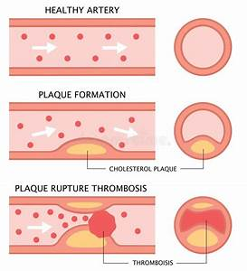 Atherosclerosis Stages 1 Stock Vector  Illustration Of Blocked