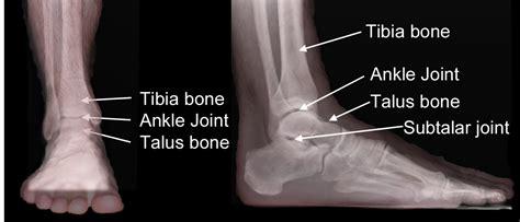 Ocd knee surgery recovery