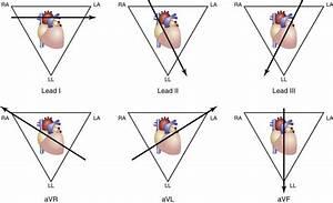Cardiopulmonary Procedures