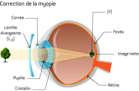 correction myopie lentille optique la physique des lunettes comprendrechoisir 188   correction myopie main 2764647