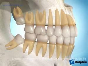 Symptome Dent De Sagesse : extraction ou degagement de dents incluses ~ Maxctalentgroup.com Avis de Voitures