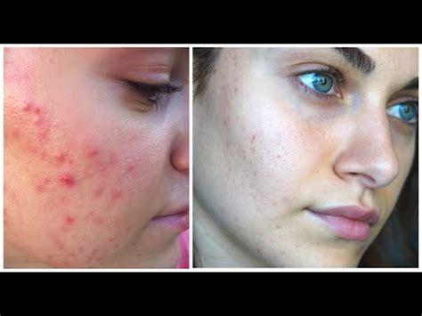 How I Treated My Open Pores & Acne Scaring | RubyGolani