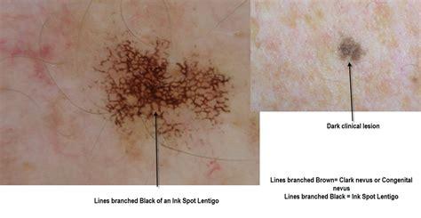 Dermoscopy Made Simple Ink Spot Lentigo
