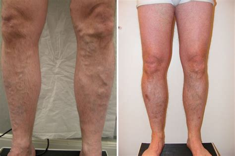 Varicose Vein Treatment Results  Scottish Vein Centre. What Is A Laboratory Technician. How Long Do Silicone Implants Last. Inventory Management Open Source. Highest Paying Dividend Game Design Institute. Rn To Md Bridge Program European Mutual Funds. Kent State University Business School. Atlanta Area Technical School. Cloud Conferences 2014 Dish Network Best Deal