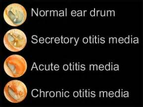 What Looks Like Otitis Media