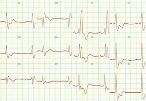 Right Bundle Branch Block EKG Examples Wikidoc