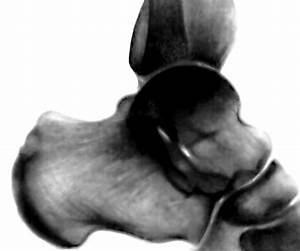 Как избавиться от боли в суставах ног скачать бесплатно