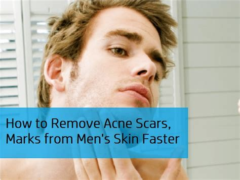 how to get rid of acne scars pimples marks spots from s skin