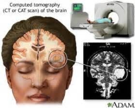 cat scan side effects what are the side effects of brain surgery