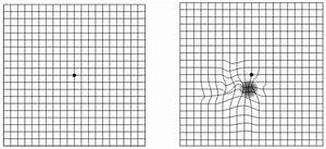 Macular Degeneration Eye Chart Grid Derwi