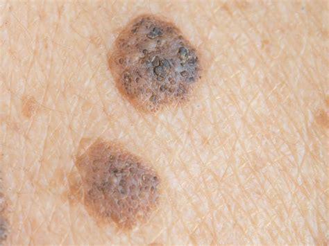 skin cancer symptoms treatment and shop infopembesarpenis com agen resmi vimax hammer of