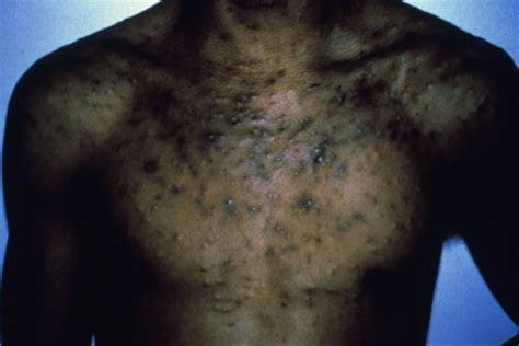 hivaids dermatological images hiv