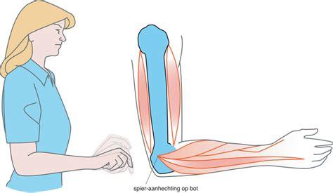 Pijn bij strekken elleboog