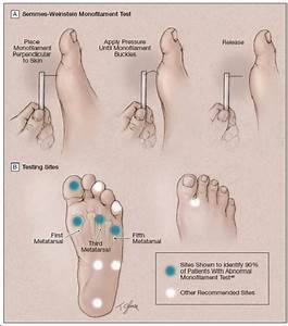 Tangents  Diabetic Foot Ulcers