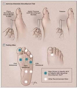Tangents  Diabetic Foot Ulcers