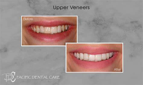 I have mass health and i was wondering if would cover veneers if i wanted to get my teeth done. Deciding if Lumineers are Right For You   Pacific Dental Care