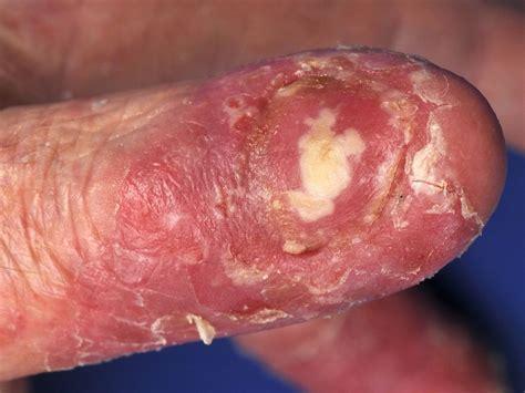 Psoriasis voetzool