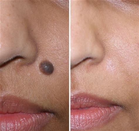Effects Of Cytotec How Can You Tell If A Skin Mole Is Cancerous