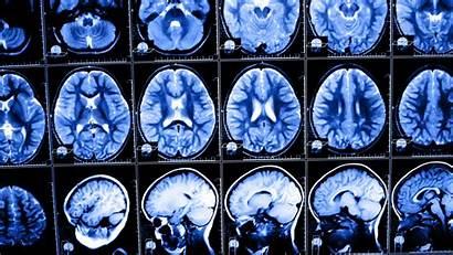 Brain Surgery National Catechism Heidelberg Geographic Tv