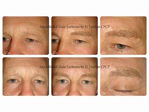 Male Eyebrows Microblading: All you need to know ...