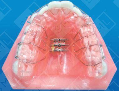 mahony twin block dental appliance reduce overbite
