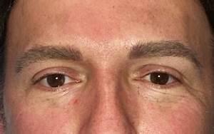 Men's Eyebrow Treatment - Permanent Makeup Services