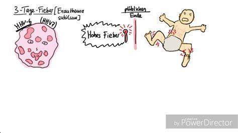 Fieber Gliederschmerzen Ohne Erkaltung Erk Ltung Alte Hausmittel