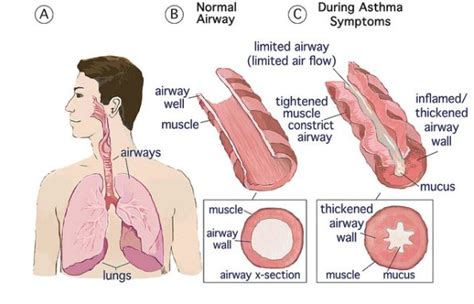 What Is Asthma A Detailed Overview And What Can Help?. Gangsta Signs Of Stroke. Floor Plan Banners. Rafting Decals. Hopelessness Signs. Arabic Banners. Teething Signs Of Stroke. Rn Graduation Banners. Drama Signs