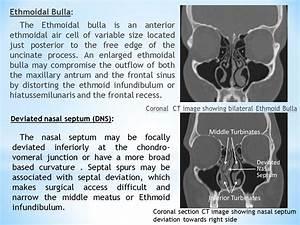 Ethmoid Bulla