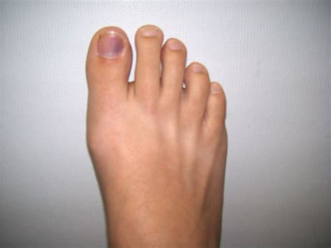 Bruised Nail Bed by What To Do About A Bruised Toe Nail Yellowbonebeauty