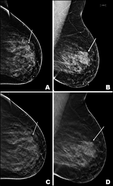 mammography  frontiers  breast cancer