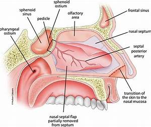 Figure 2 From Lateral Sphenoid Sinus Recess Cerebrospinal