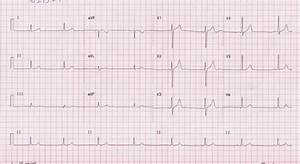 Ecg Showing Sinus Bradycardia