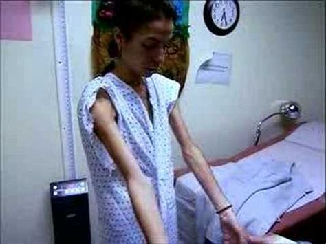 thin anorexia nervosa  bulimia gymnastics coachingcom