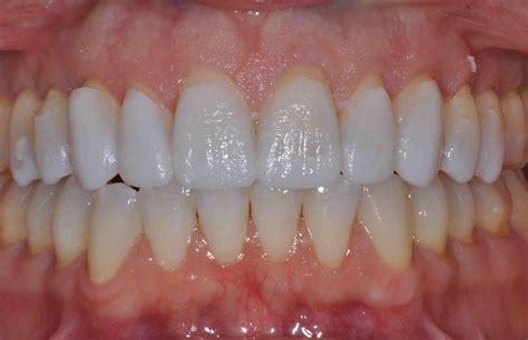 mock  web lee ann brady dmds dental blog
