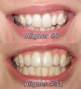 Invisalign: The Home Stretch | S&S Blog