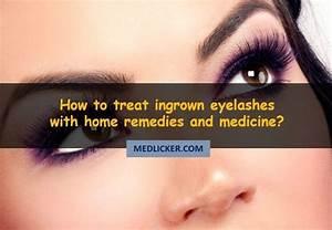 Eyelashes  Ingrown  Treat How To Deal With Ingrown