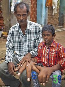 Indian boy with giant hands from local gigantism gets life ...